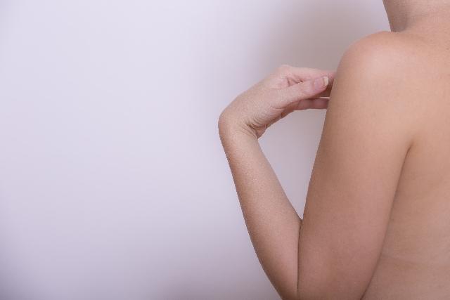 Upper arm rash